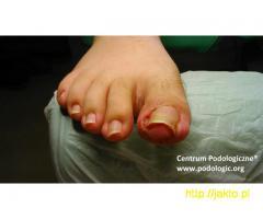 Wrastające i wkręcające się paznokcie